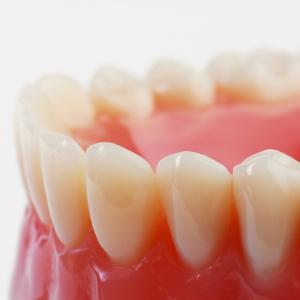 入れ歯に不満を感じてしまうのはなぜ?