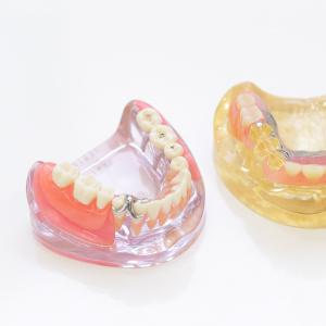 『入れ歯』or『インプラント』