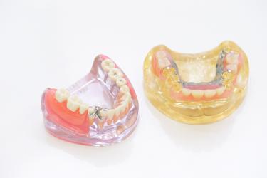 入れ歯orインプラント